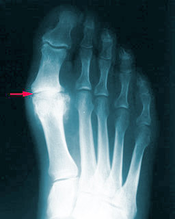 big-toe-arthritis