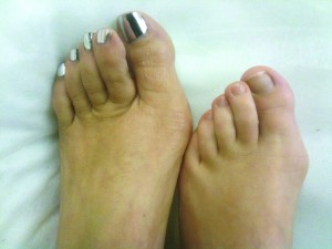 Mother and daughter showing that bunions are in the genes