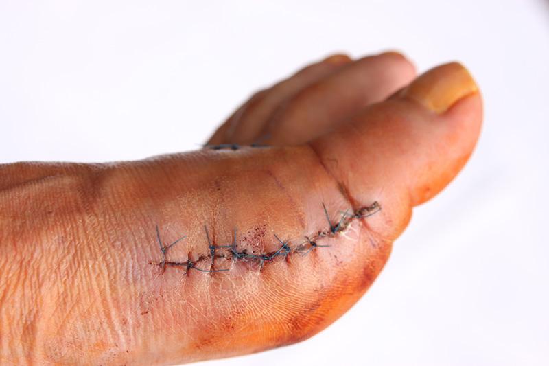 Боли после операции халюс вальгус