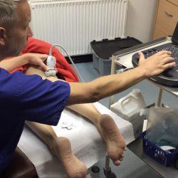 Steve ultrasound